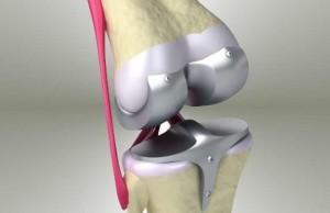 diz protezi ameliyati