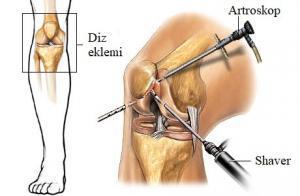 diz artroskopi nasıl yapılır